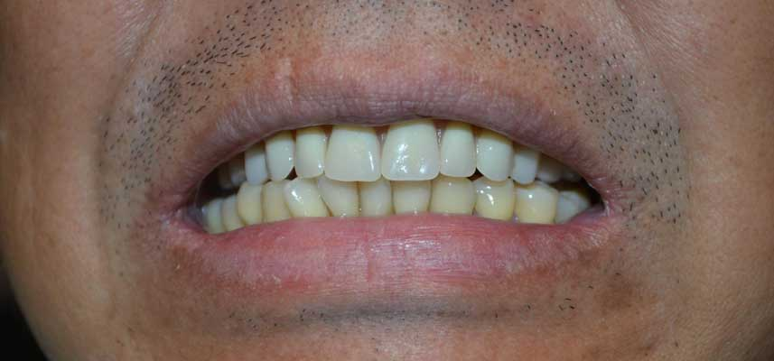After picture of full upper denture