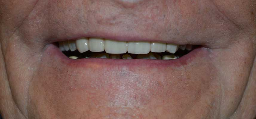 After picture of dental crowns and bridges