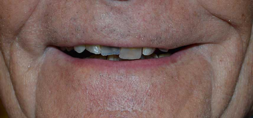 Before picture of dental crowns and bridges