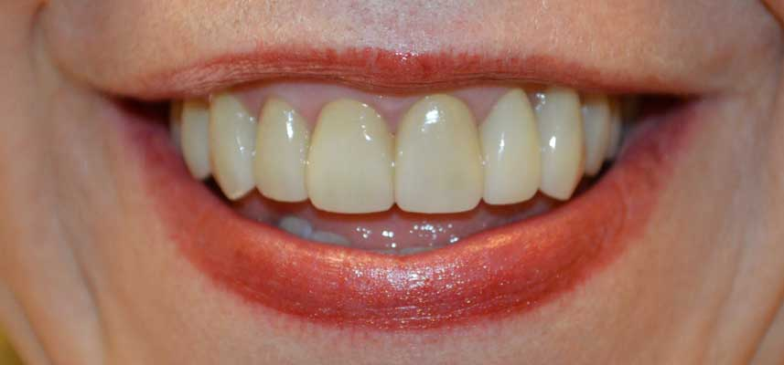 After picture of Veneers