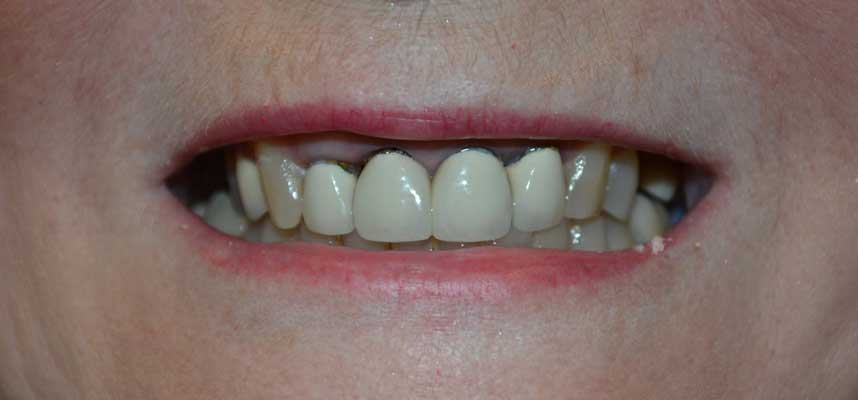 Before Picture of Dental Crown Replacements