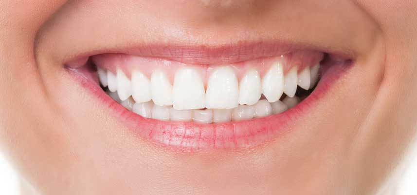 After picture of Teeth Whitening