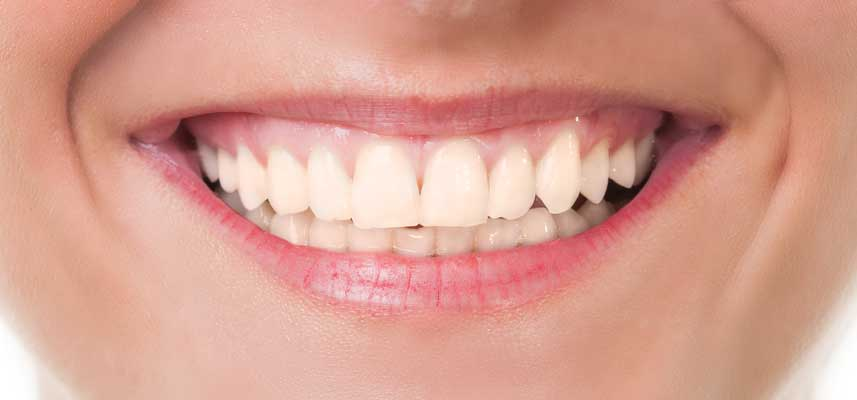Before picture of Teeth Whitening